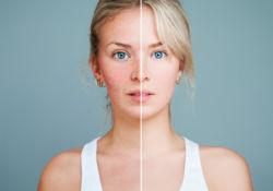 La rosacée, une vraie maladie de peau